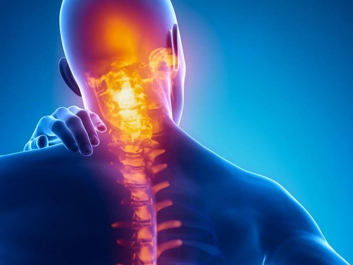 Cause e sintomi del dolore alla cervicale